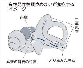 三半規管 石 マツコ